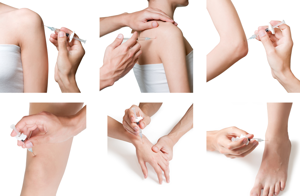 prolotherapy-injections-chicago