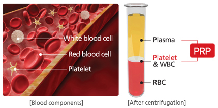 PRP_Plasma_Concentrate